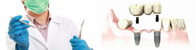 experto-protesis-implantes